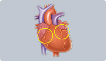 Heart Valve Information | Leesburg Regional Heart Institute ...